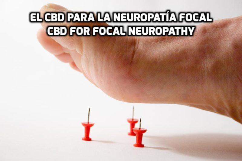 How CBD can help for Focal Neuropathy