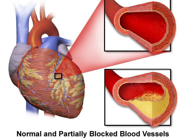 blocked heart artery