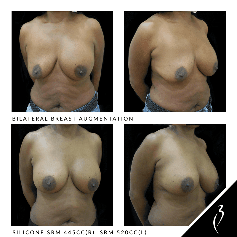 Before After Breast Implants · Rancho Cucamonga · Case Study 5012