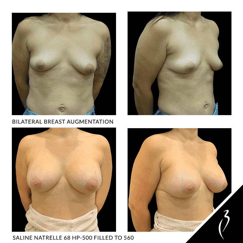 Before After Breast Implants · Rancho Cucamonga · Case Study 5047