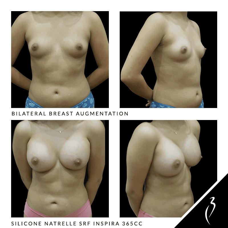 bilateral breast augmentation#5046 in Rancho Cucamonga
