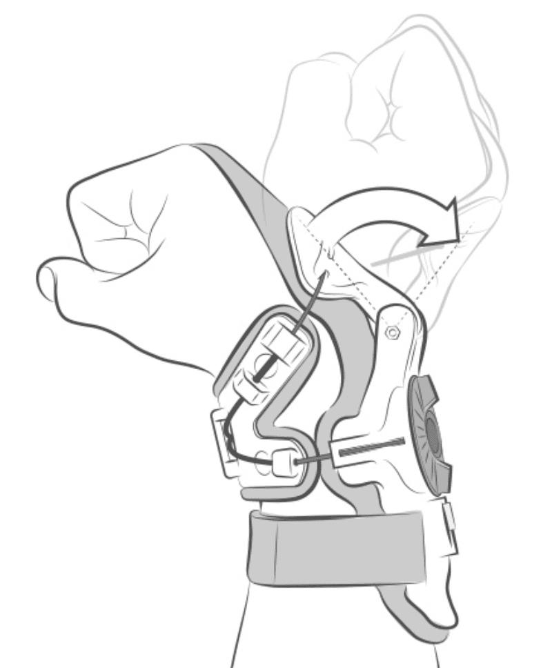 how the mobius wrist brace works