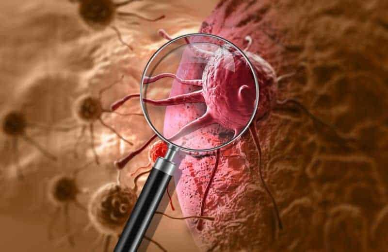 immunoterapia nowotworów