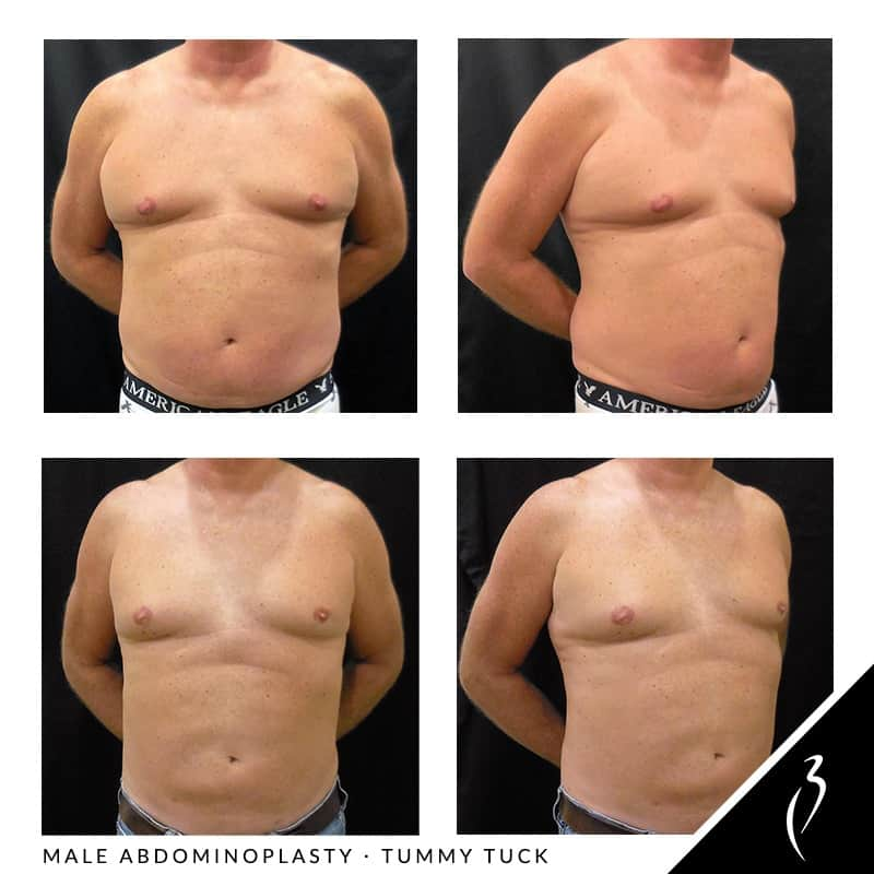 Tummy tuck for men, male abdominoplasty procedures, liposuction for men, body contouring for men. Procedures in Rancho Cucamonga, Inland Empire · SoCal