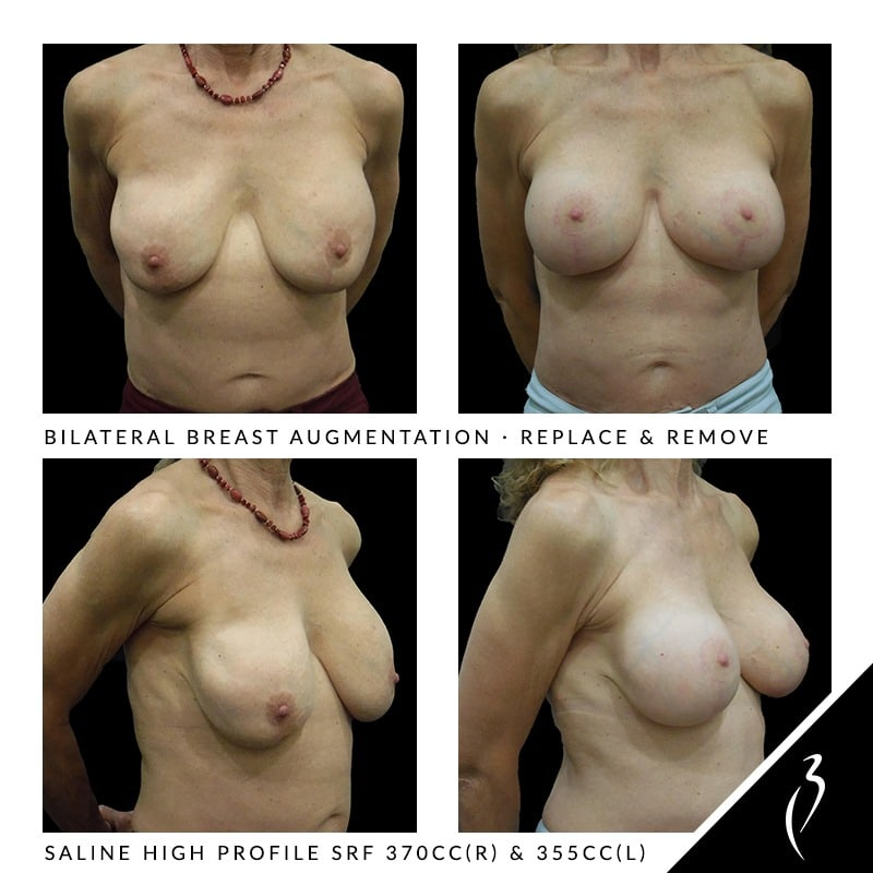 Removal & Replacement Breast Implants · Rancho Cucamonga