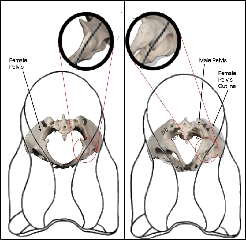 pelvis-bottom-comparison
