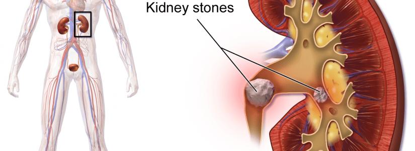 Nierstenen kan je dat homeopathisch behandelen?