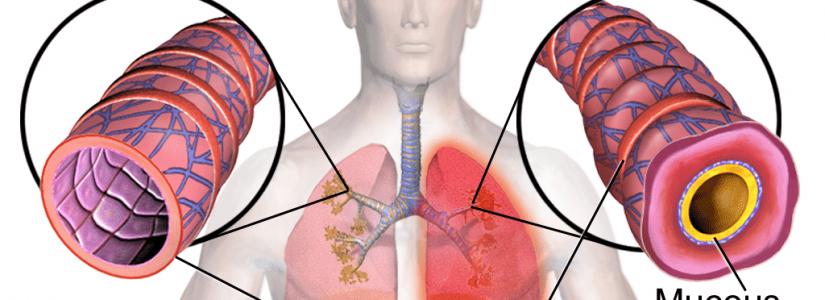 Bronchitis, bezoek eens een klassiek homeopaat.
