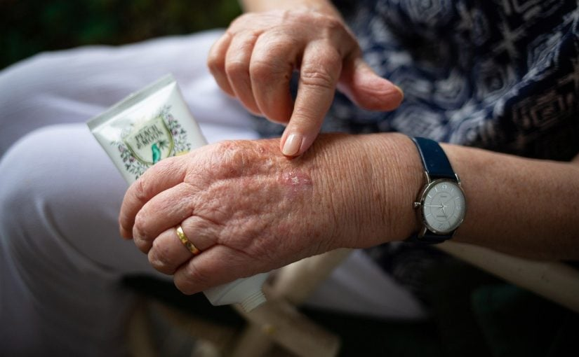 Artrose en de homeopatische behandeling