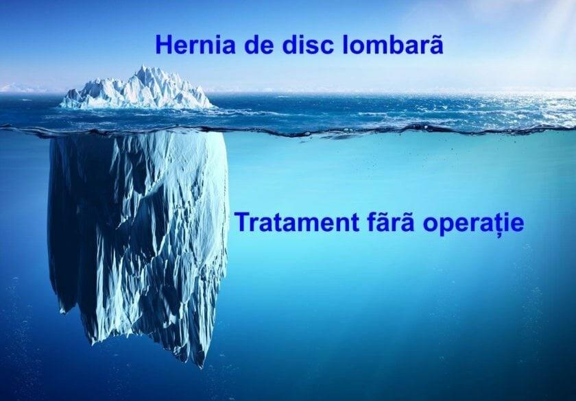 Hernia de disc: simptome, diagnostic şi tratament - Move&Flex