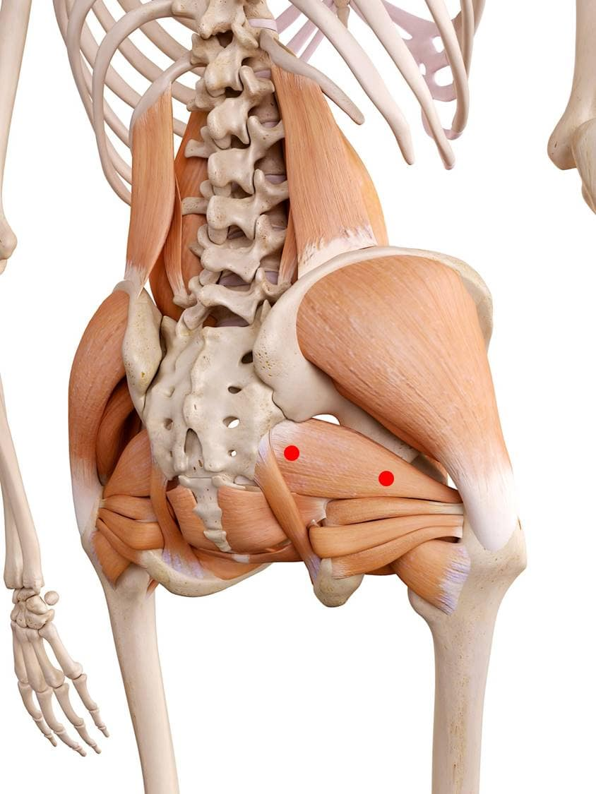 Triggerpunkte im Piriformis-Muskel verursachen Schmerzen im Gesäß, die durch Gehen, Stehen oder Sitzen zunehmen. Außerdem kann durch eine Verhärtung der Ischiasnerv gedrückt werden, was zu einer Ischialgie (Piriformis-Syndrom) führt.