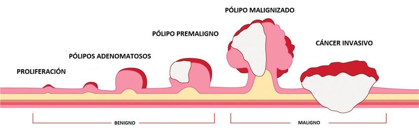 Coloproctología en Córdoba