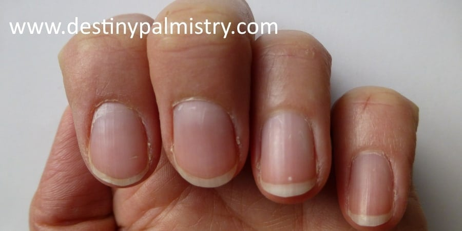 nail shape, fingernail ridges, health from fingernails, fingernails in palmistry