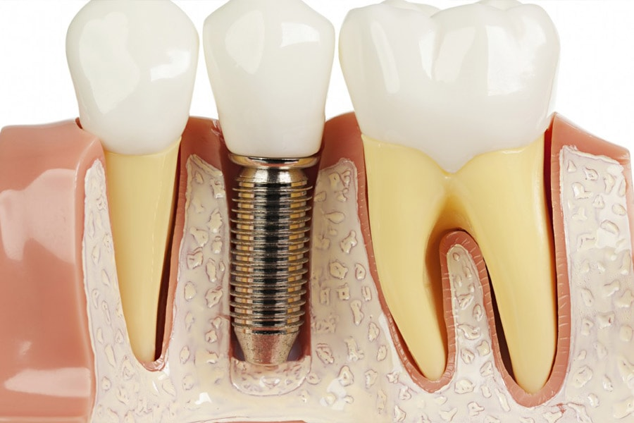 Dental Implants Are Surgically Inserted