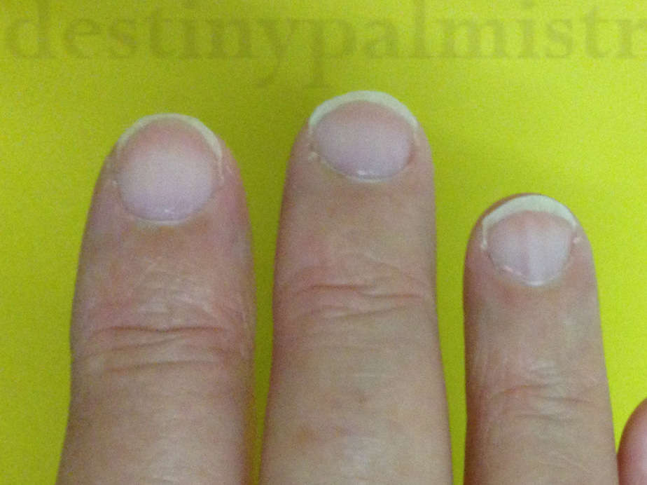 health signs from fingernail, white fingernails, white nails meaning, is white nail bad?