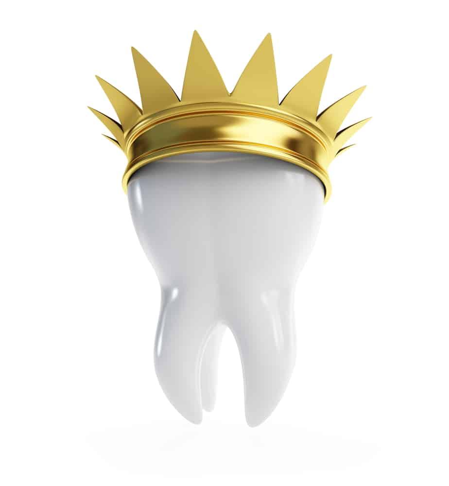 metal crowns