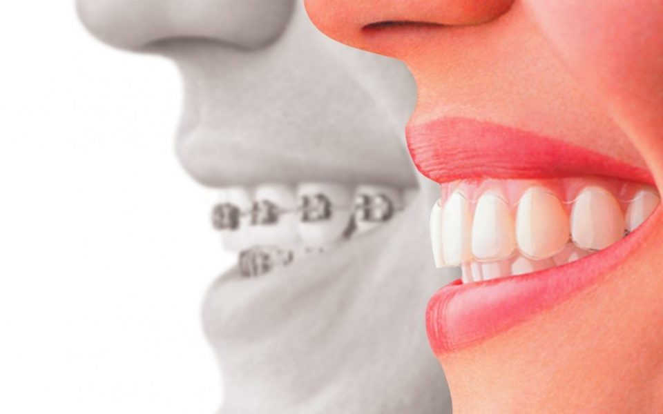 invisalign clear braces greensboro nc