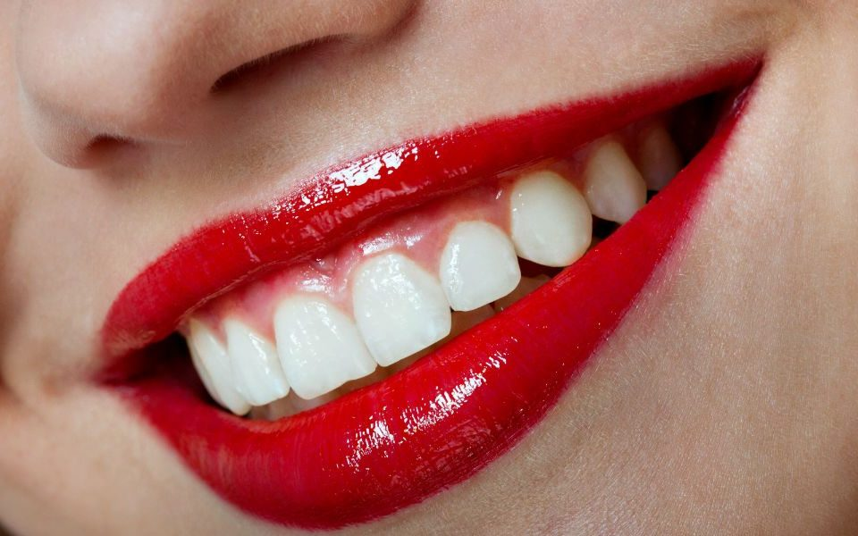 Are Dental Veneers Permanent?