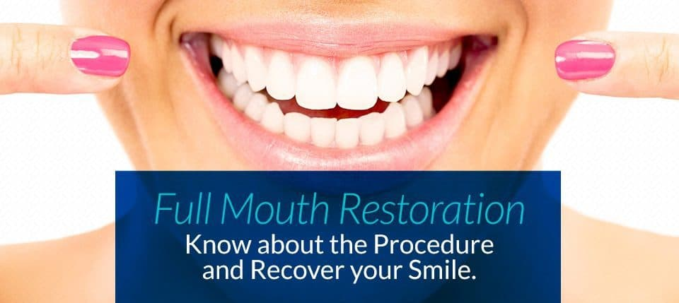 affordable Full mouth restoration