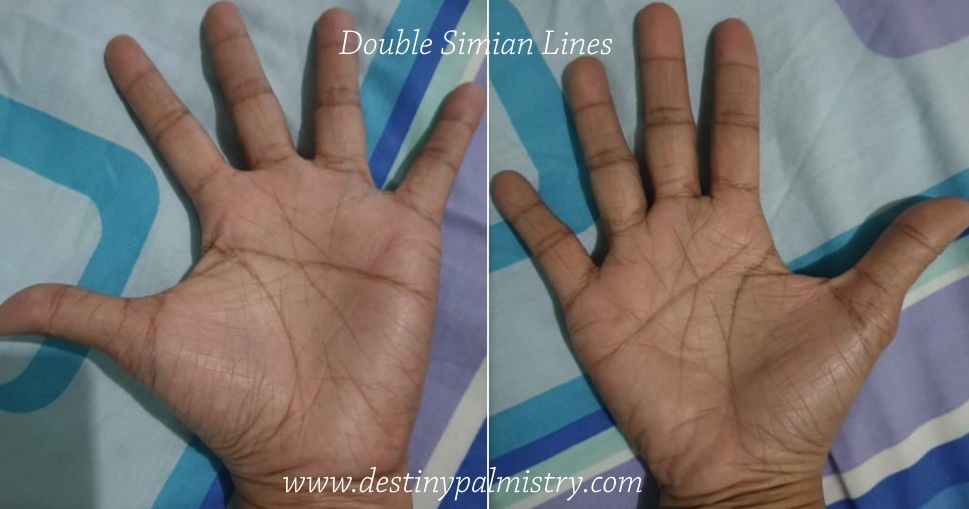 Double Simian lines on the palms