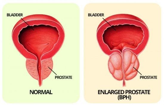 BPH of the prostate