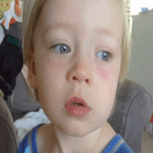 Почему у ребенка красные синяки под глазам