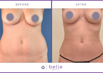 Belle_Medical-Before_After-Body_Sculpting-1-1024x640
