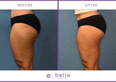 Belle_Medical-Before_After-Body_Sculpting-7-1024x640