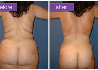 back-buttocks-female-5-body-sculpting-belle-medical