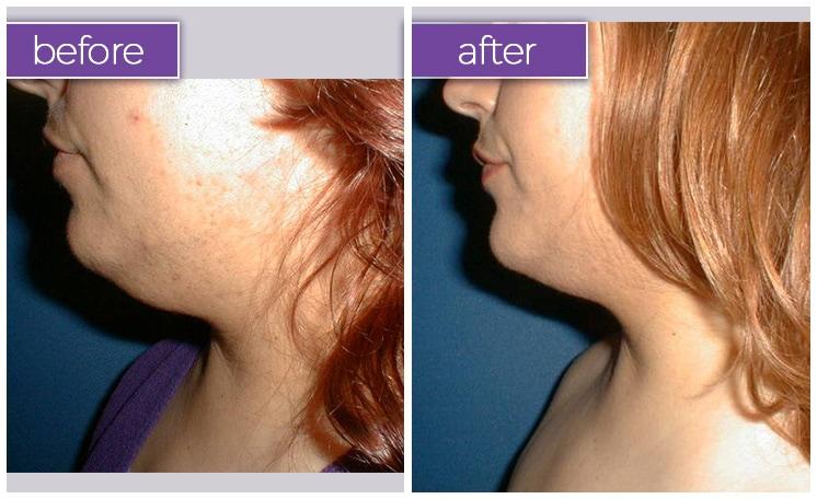 chin-female-14-body-sculpting-belle-medical