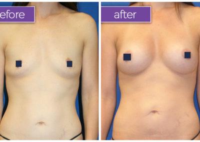 fat-transfer-breasts-2-BeforeandAfter-1