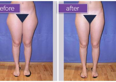 legs-female-6-body-sculpting-belle-medical