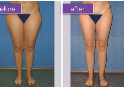 legs-female-9-body-sculpting-belle-medical