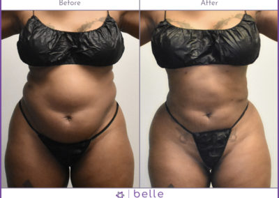 BM-WOC-Mom-Pooch-2-Before-After