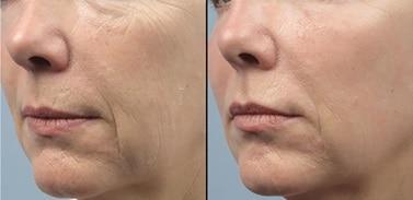 results-forma-skin-tightening-02-img