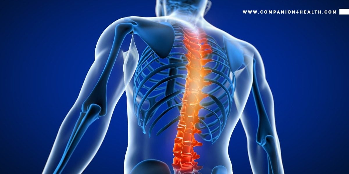 Back ache: Everything you need to know - Companion4health