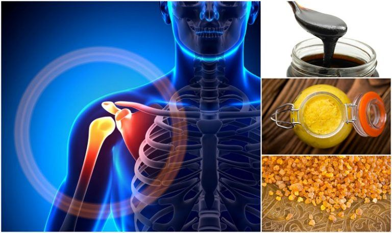 14 remedios naturales más eficaces para aliviar el dolor de las articulaciones