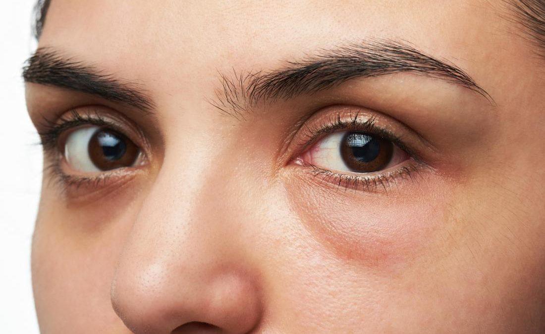 Inflamación facial de un lado (cara hinchada en un lado)