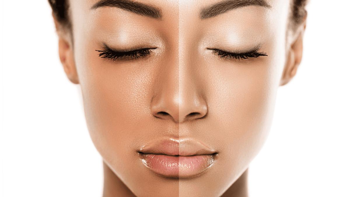 Aclarar la piel: Cirugía, costo para cuerpo completo permanente y efectos secundarios
