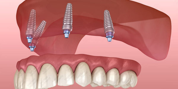 All-on-4 dental implants: Meet your new bright whites