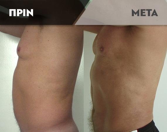 Results-Body11