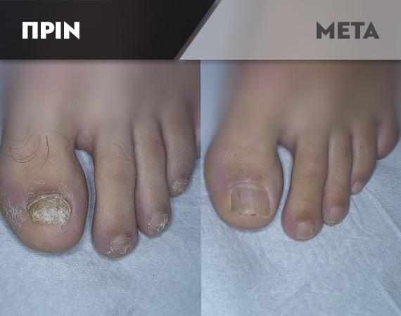 Results-Nails2