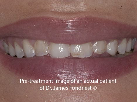 Stained unattractive teeth