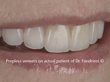 Prep less Veneers | Empress Veneers