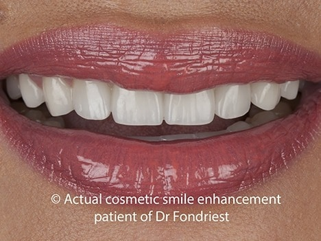 Porcelain veneers to replace bonding
