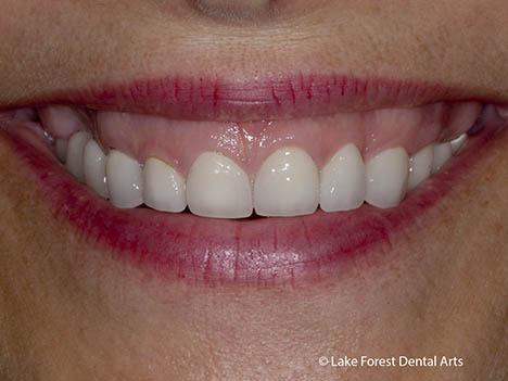 Crown lengthening for a gummy smile