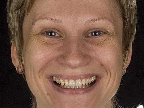 small lower jaw, supererupted teeth, alternative to orthodontics