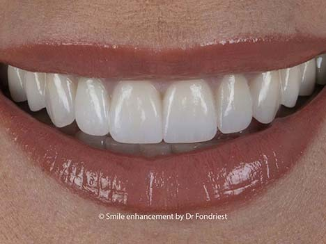 Example of Cosmetic Prosthodontic Treatment