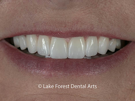 Are veneers better than crowns - after image