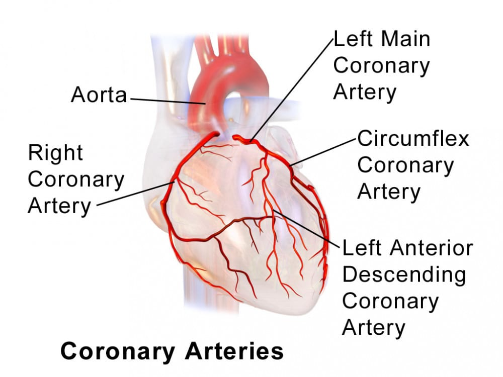 Coronary arteries how to reduce plaque in your arteries